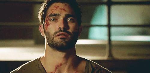 Derek Hale (Tyler Hoechlin) in