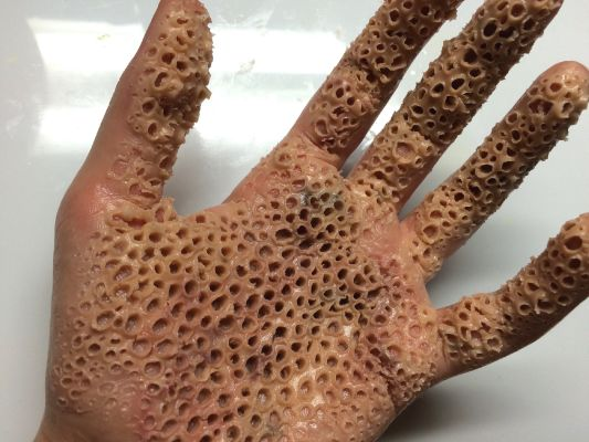Do You Have Trypophobia A Fear Of Small Holes Quiz